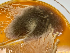 Yeast versus Mold: Yeast is the smooth white and mold is the fuzzy green/black